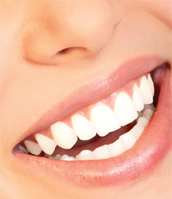 teeth_whitening1