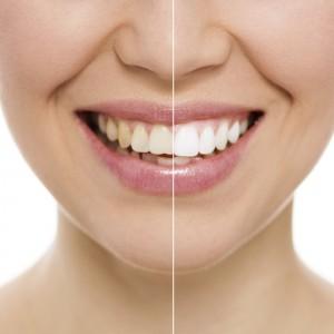 Brookfield teeth whitening