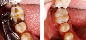 A damaged tooth compared to a restored tooth.